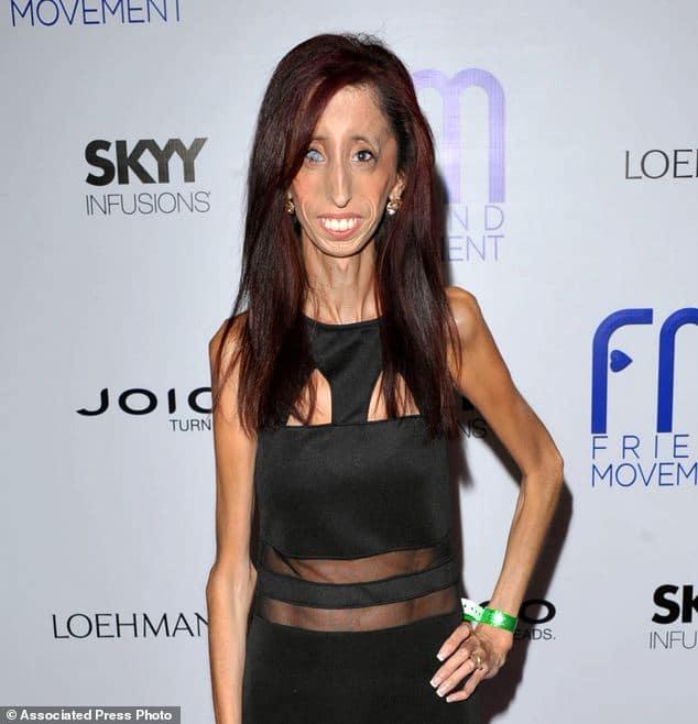 Lizzie Velasquez - skinniest person in the world